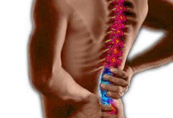 Come è il trattamento di un ernia del disco?