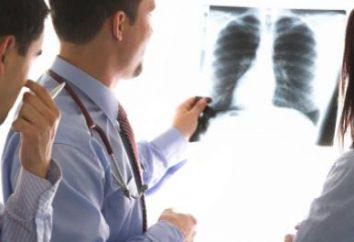 Bronquite em adultos – Tratamento e Prevenção