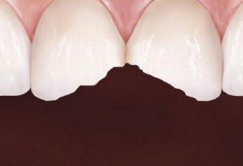 Dent s'effrite – ce qu'il faut faire? Dentisterie, conseils dentaires