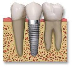 Implants dentaires: chirurgie du patient commentaires