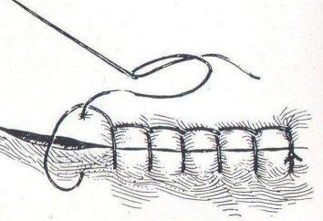 Resorbierbares Nahtmaterial. chirurgisches Naht