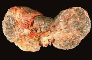 ¿Cómo se contrae la hepatitis C y qué se puede hacer, eso no sucedió