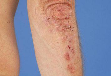 Duhring dermatiti: cause, sintomi, diagnosi e le caratteristiche di trattamento