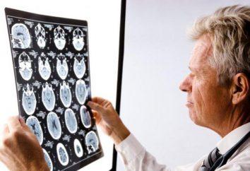 Dobry neurolog (Moskwa): Ocena opinie. Że traktuje neurologa, jakie objawy się skontaktować? Płatne neurolog