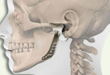 TMJ: problèmes et solutions, méthodes de traitement