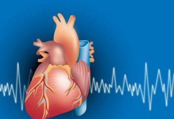 EKG-Rate der Basisindikatoren