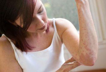 Tabletki na alergie skóry i innych skutecznych sposobów leczenia