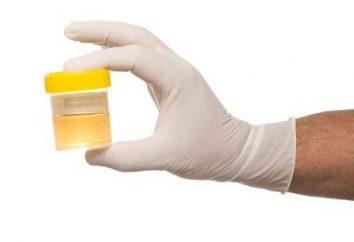 L'analisi delle urine per Nechyporenko. Come assemblare correttamente?