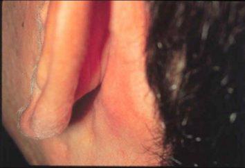 Spuchnięte węzły chłonne za uszami – nauczyć się samodzielnie wykryć problem