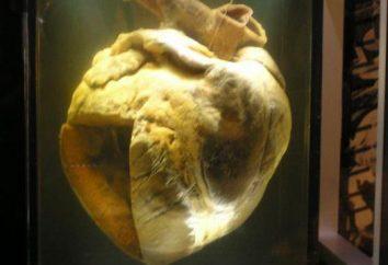 ¿Cómo funciona el sistema circulatorio? ¿Cuáles son los cuerpos consisten?