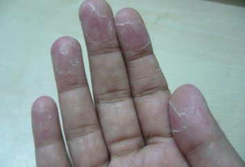 Pourquoi la peau écailleuse? L'enfant peau oblazit sur les doigts: ce qu'il faut faire