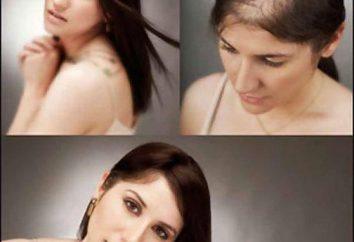 O melhor shampoo para o crescimento do cabelo: taxa, características e comentários