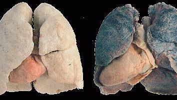 pulmões do fumante – o órgão mais vulnerável