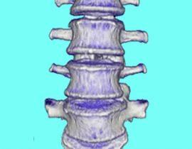 Zesztywniające zapalenie stawów kręgosłupa u kobiet: co to jest, jaka jest różnica objawy