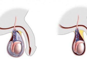 Wodniak jąder u mężczyzn, dzieci: przyczyny, objawy, leczenie, zdjęcia w domu