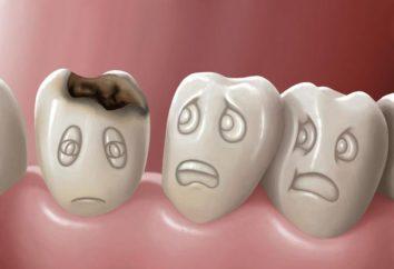 Perché il sogno di un buco nel dente? Sogno libro vi dirà la risposta