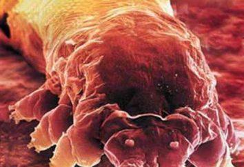 acariens de la peau sur le visage. Quel est le danger démodécie?