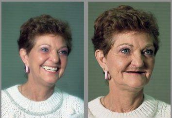 dentisterie prosthétique: un gage de beauté et la santé de votre sourire!
