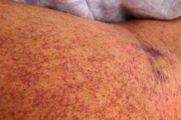 Purpura thrombocytopénique chez les adultes: le diagnostic, les causes et le traitement