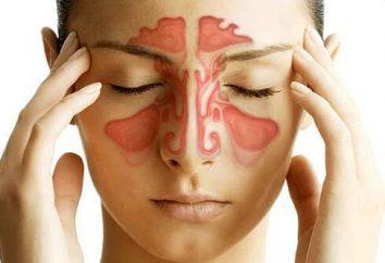 El tratamiento de la sinusitis aguda en el hogar