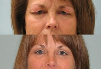 Odsysanie tłuszczu – przed i po. Opis procedur, rodzajów, skutków i odpowiedziach