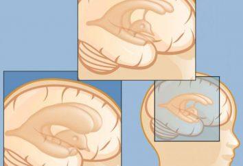Maladies de la tête: les noms et les symptômes