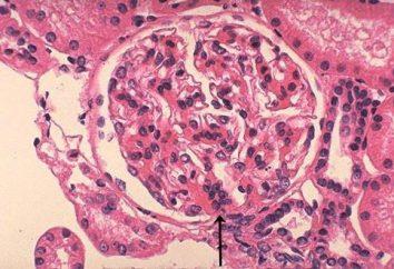 Berger-Krankheit (IgA-Nephropathie): Ursachen, Behandlung
