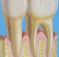 Parodontose-Behandlung und Symptome bei Erwachsenen