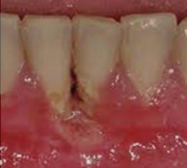 Che cosa è la malattia parodontale? Le sue cause