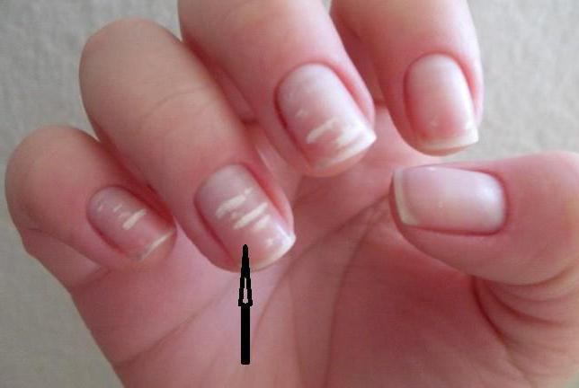 weiße flecken auf fingernägel