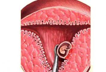 Aborcja jest bezpieczna: przerwanie ciąży