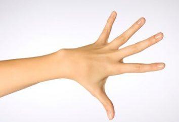 Często zdrętwiałe ręce? Przyczyny tego problemu