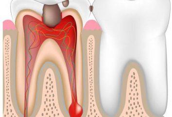 Fasi del trattamento pulpite con i farmaci. endodonzia