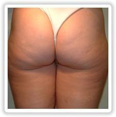 Celulitis en las nalgas: los métodos de eliminación. Ejercicios. tratamientos de belleza