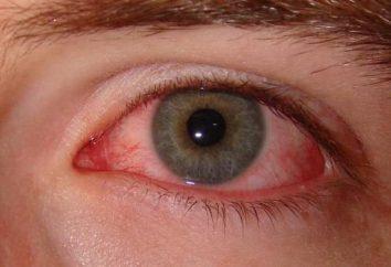 Wirusowe zapalenie spojówek: Objawy i leczenie dzieci i dorosłych