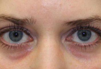 Wypełniacze oka: opinie, zdjęcia przed i po