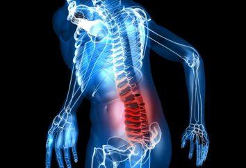 Lumbodynia: ¿qué es? Causas, síntomas y tratamientos del dolor de espalda