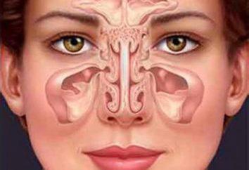 Mogę ogrzać nosa zatok? Kiedy zapalenie zatok może być ogrzewana lub nie nos?