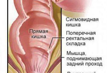 Comment se détendre le muscle du sphincter du rectum? Spasme du sphincter du rectum: symptômes et traitement