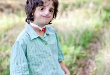 Zespół Franceschetti: przyczyny, objawy i leczenie choroby