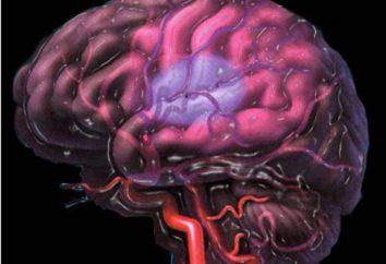La isquemia cerebral en bebés de 2 grados: síntomas y tratamiento. Isquemia cerebral 2 grados en el recién nacido: efectos