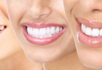 prophylaxie dentaire pour la prévention des maladies des dents et des gencives