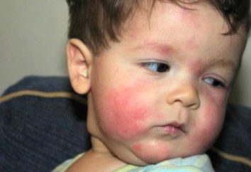 Alergie pokarmowe u dziecka: co robić?