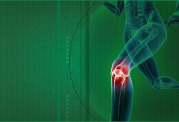 kolano medycznych z choroby zwyrodnieniowej stawu kolanowego: jak wybrać?