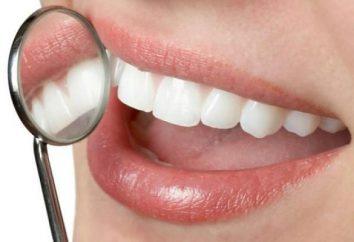 problemi dentali: cause e la raccomandazione del medico