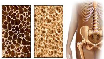 Knochendensitometrie und Osteoporose – eine weitere Chance im Voraus, um herauszufinden, über die Krankheit
