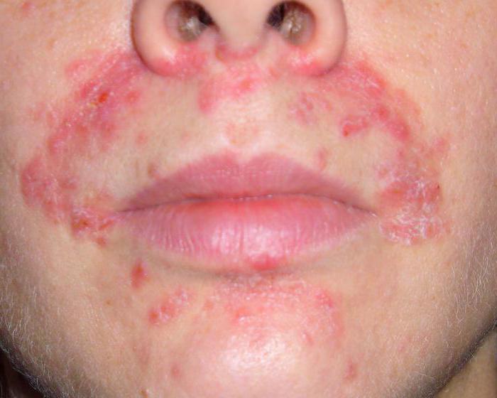 какая аллергия бывает на собак