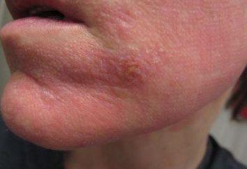 macchia rossa sulle bucce viso e pruriti: cosa fare?
