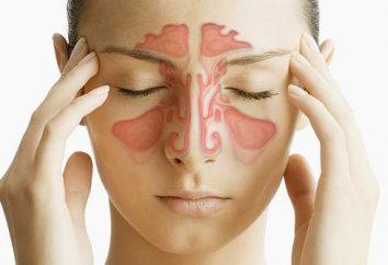 Les symptômes de la sinusite et le traitement à la maison