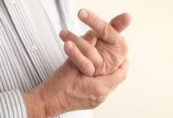 Zwichnięty palec na rękę: opis i charakterystyka leczenia